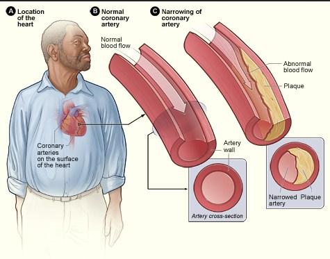 Symptoms of coronary disorder